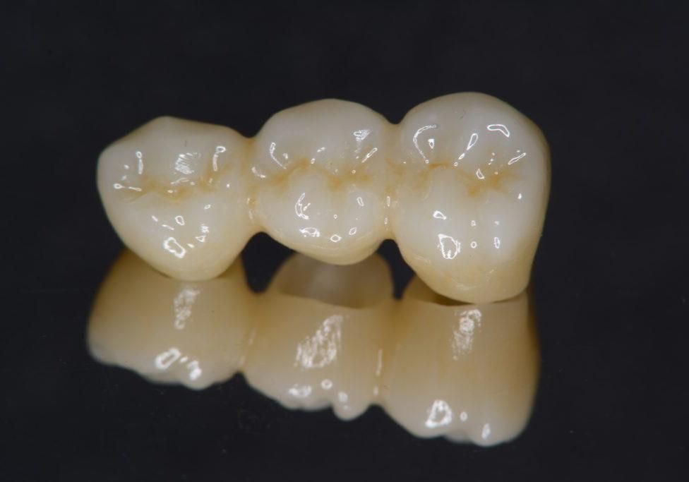 臼歯ブリッジ症例① (2)